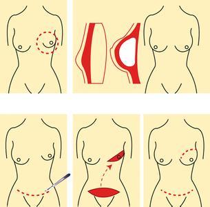 腺增生会使月经推迟吗